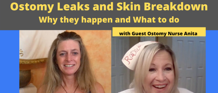 Elaine and Nurse Anita. Ostomy Leaks and Skin Breakdown. Why they happen and what to do